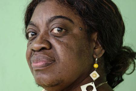 Brain tumour victim in Cuba
