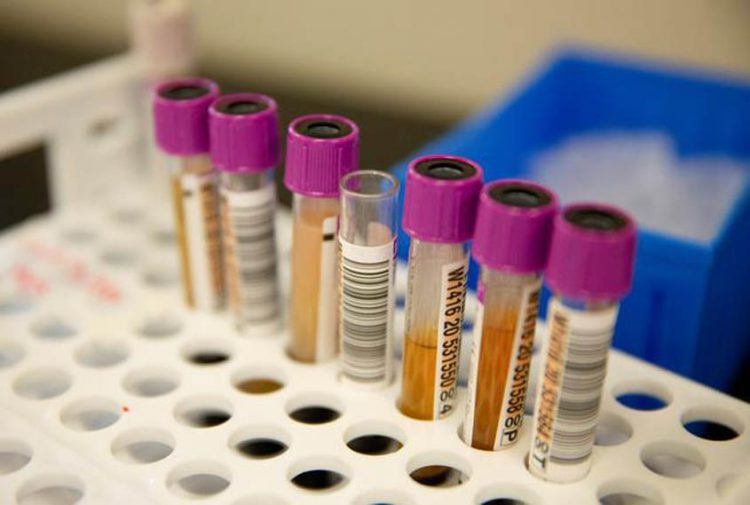 Convalescent plasma shows little benefit in Covid-19 hospitalised patients