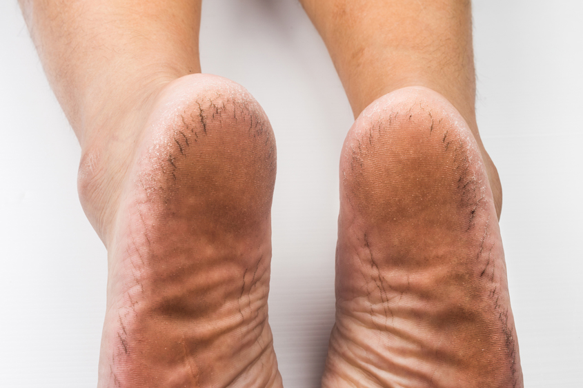Living with diabetic feet